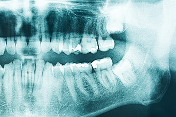 Panoramic Dental X-Ray Of Human Teeth