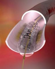 Sezione di un'arteria con stent inserito. Inserimento chirurgico