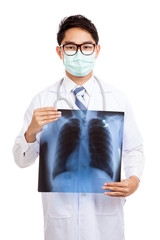 Asian male doctor wear mask  with lung x-ray film