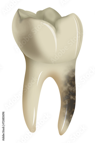 canvas print picture Decayed tooth isolated on white background