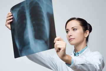 Female doctor examining x-ray image