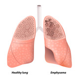 Chronic obstructive pulmonary disease poster