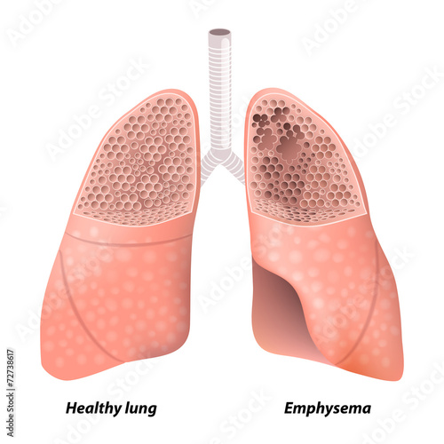 Chronic obstructive pulmonary disease - 72738617
