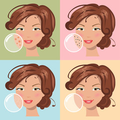 Different skin problems. Vector illustration
