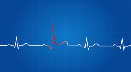 Blueprint Of Heart Attack On Electrocardiogram
