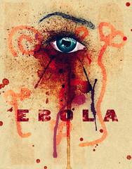 Ebola Eye