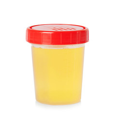 Urine sample in container