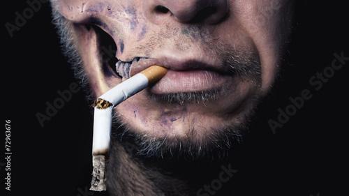 Smoking kills - 72963676