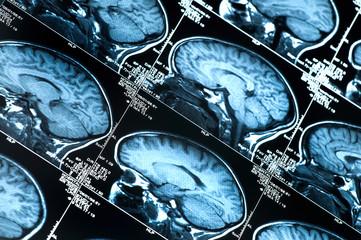MRI Scan of human head brain and skull