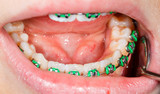 Teeth with braces - 73047251