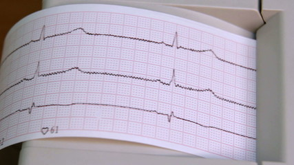 Electrocardiograph in use