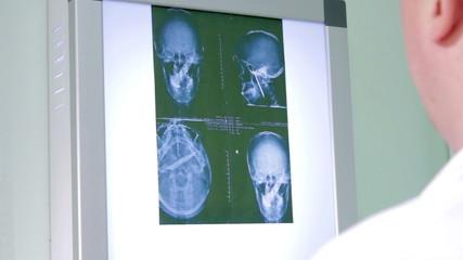 Doctor examines an X-ray of the brainpan