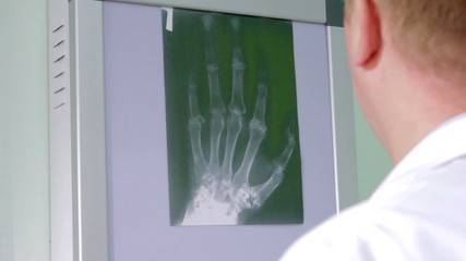 Doctor examines an X-ray of the wrist