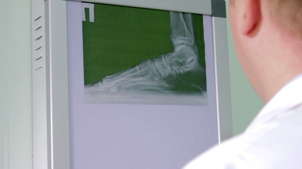 Doctor examines an X-ray of the foot