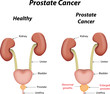 Постер, плакат: Prostate Cancer