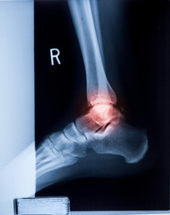 Ankle feet & knee joint X-ray human photo film..