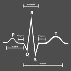 Normal Electrocardiogram Graphic Explained On Blackboard