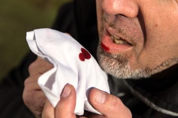 Mann hustet Blut in ein Taschentuch