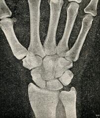 Wrist X-ray radiograph