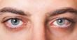Leinwandbild Motiv Irritated red bloodshot eye