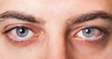 Irritated red bloodshot eye