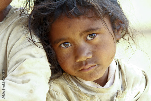 Poverty, portrait of a poor little African girl lost in deep tho - 73410813