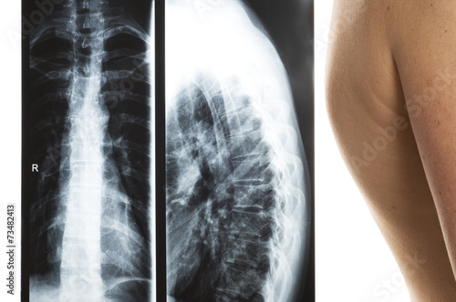 Leinwanddruck Bild Röntgen der Brust- und Lendenwirbelsäule, Rundrücken