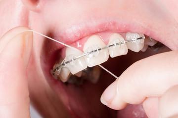 Mund mit Zahnklammer mit Zahnseide reinigen