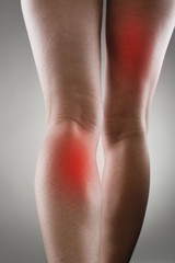 Injured female legs with red spots. Muscle strain and stretch.
