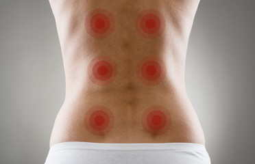 Acupressure shown with red spots on woman's back
