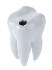 Tooth with black hole caries