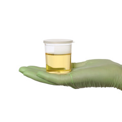 Hand in glove hold urine sample in bottle, medical exam