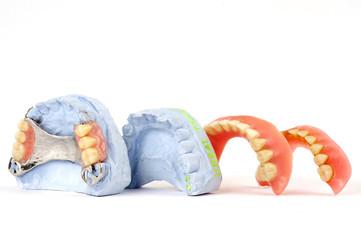 dentures 7