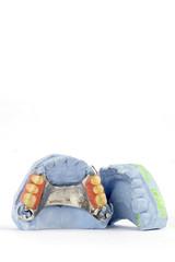 partial denture 6