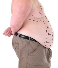Fat man marked with lines for abdominal cosmetic surgery