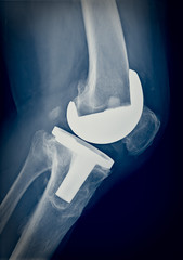 Bicompartmental knee prosthesis xray