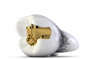 Zahngold und Löcher