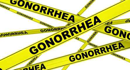 Гонорея (gonorrhea). Желтая оградительная лента