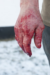 Hand with blood