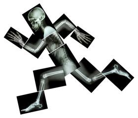 Marathon (human bone is running) ,(Whole body x-ray )