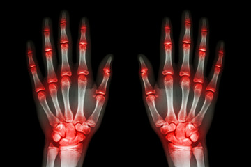 multiple joint arthritis both hands ( Gout , Rheumatoid )