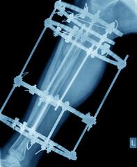 xray of broken leg