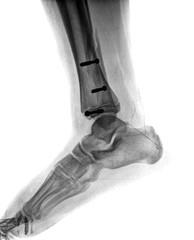 broken leg with screw
