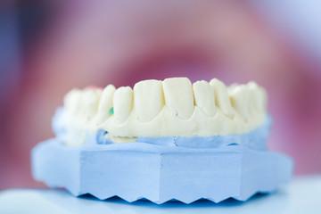 Dental plaster mold