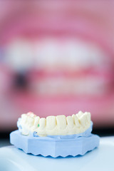 Dental gypsum mold