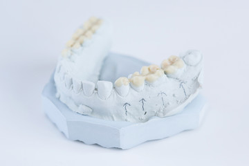 Ceramic crowns on a mold