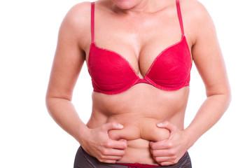 nach der Diät, Probleme mit der Haut - isoliert