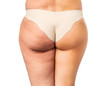 Cellulite treatment, before and after - 74366605