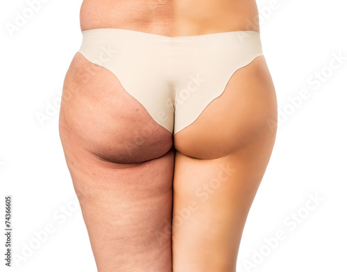 Leinwanddruck Bild Cellulite treatment, before and after
