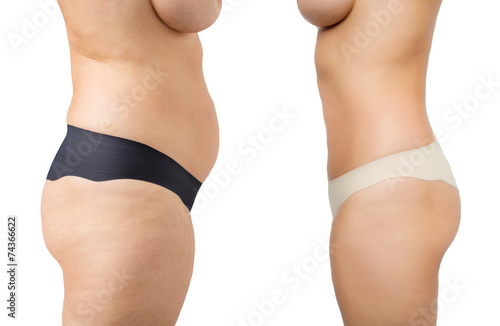 Weight loss, before and after - 74366622